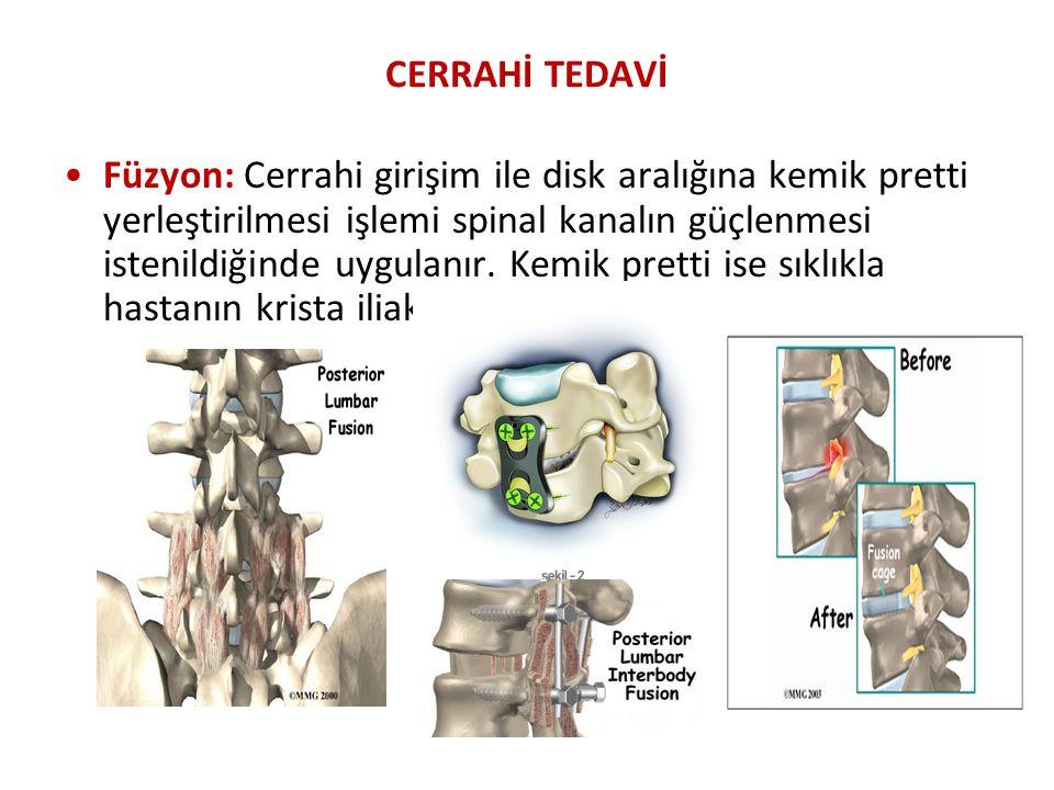 CERRAHİ TEDAVİ Füzyon: Cerrahi girişim ile disk aralığına kemik pretti yerleştirilmesi işlemi spinal kanalın güçlenmesi istenildiğinde uygulanır. Kemi