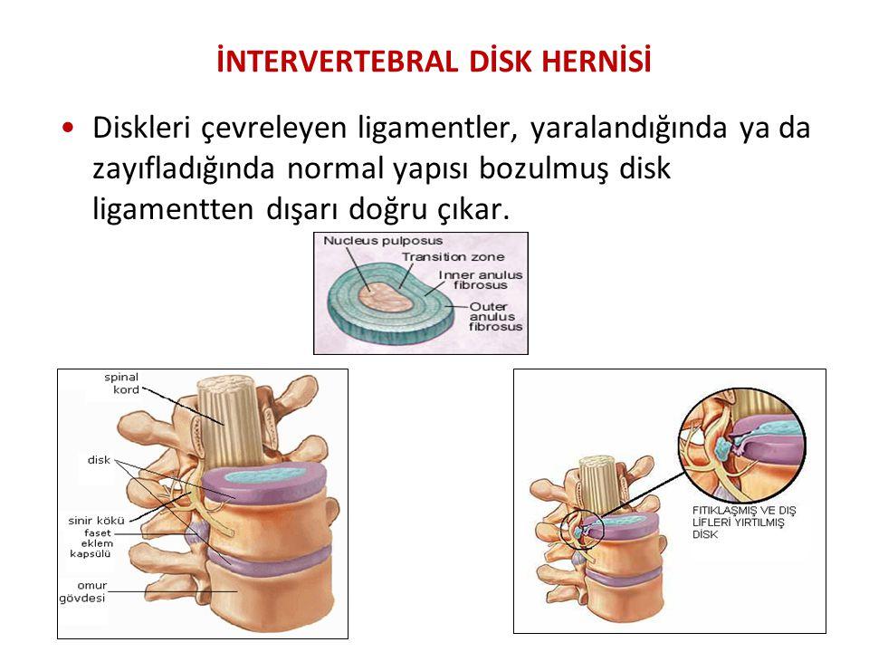 İNTERVERTEBRAL DİSK HERNİSİ Diskleri çevreleyen ligamentler, yaralandığında ya da zayıfladığında normal yapısı bozulmuş disk ligamentten dışarı doğru