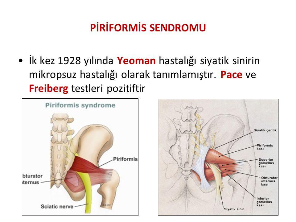 PİRİFORMİS SENDROMU İk kez 1928 yılında Yeoman hastalığı siyatik sinirin mikropsuz hastalığı olarak tanımlamıştır. Pace ve Freiberg testleri pozitifti
