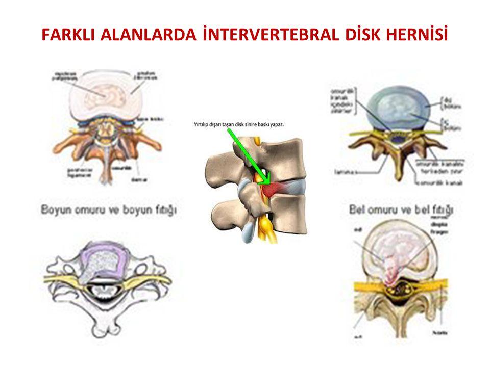 CERRAHİ TEDAVİ Foraminektomi: İntervertebral furomen daraldıysa ve ostefitik çıkıntılar ( kemiklerin büyümesiyle oluşan çıkıntılar ) sinir köklerini sıkıştırıyorsa foraminektomi uygulanır.