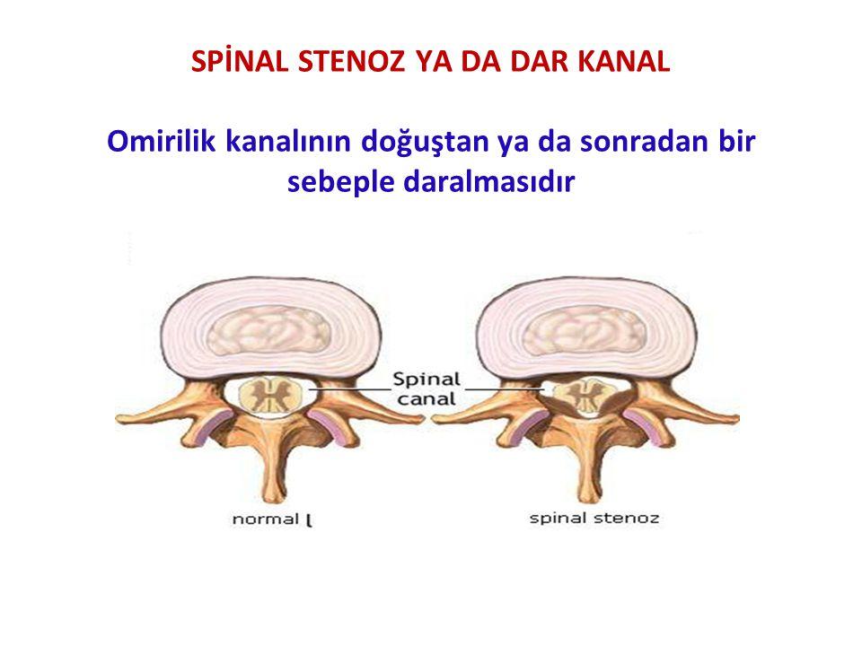 SPİNAL CERRAHİ GİRİŞİMİNDEN SONRA GÖRÜLEBİLECEK KOMPLİKASYONLAR Enfeksiyon Kanama Sinir kökleri, duramater, spinal kord yada diğer komşu organlarda yapılan yaralanmalar Vertebral kolonun mekanik bütünlüğünün bozulması Diskin yeterince çıkarılamaması Spinal kord basısı