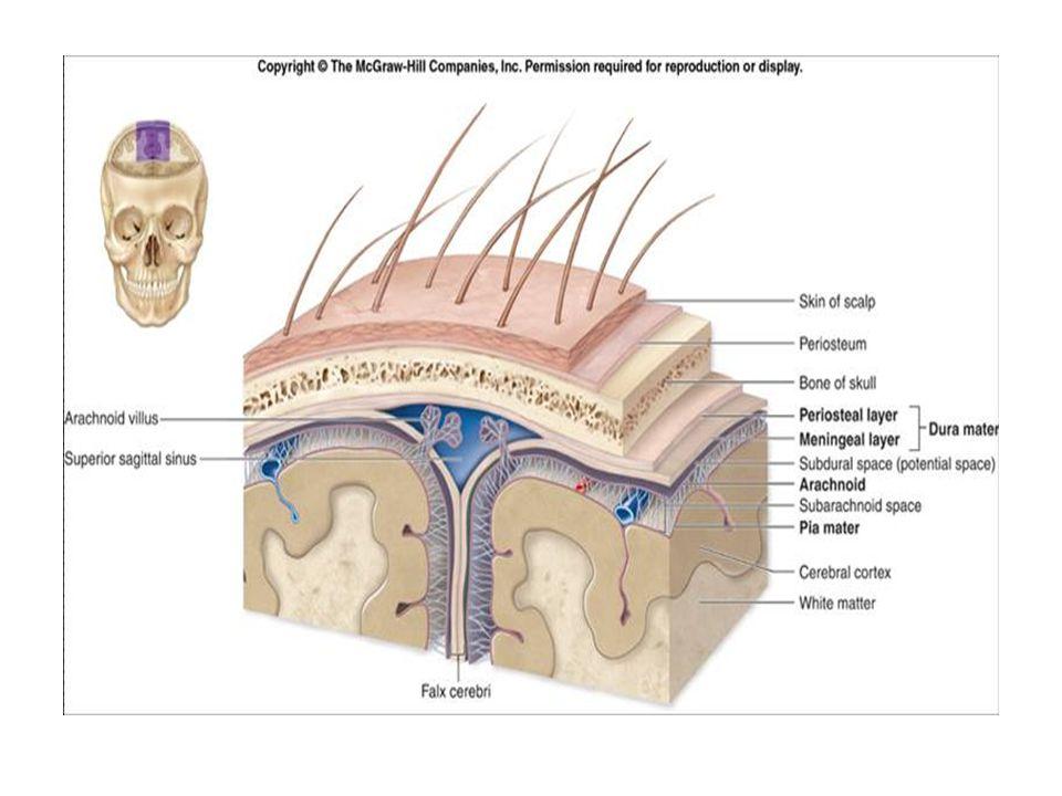 EPİDURAL HEMATOM  Genellikle arteriyel kaynaklıdır.