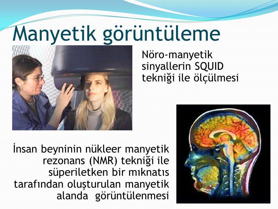 İnsan beyninin nükleer manyetik rezonans (NMR) tekniği ile süperiletken bir mıknatıs tarafından oluşturulan manyetik alanda görüntülenmesi Nöro-manyet