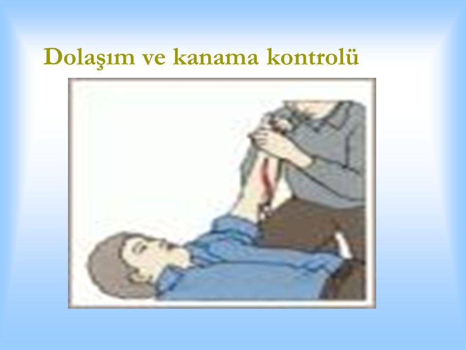  Kanama yaralanma sonrası önlenebilecek ölüm nedenlerinin başında gelir.