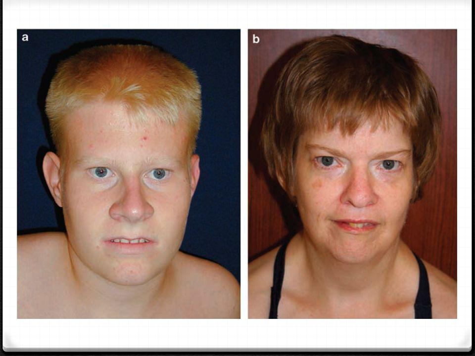 METABOLİZMA İŞLEYİŞİNDEKİ SORUNLAR Fenilketonüri: 0 Kalıtsal metabolik bir hastalıktır.