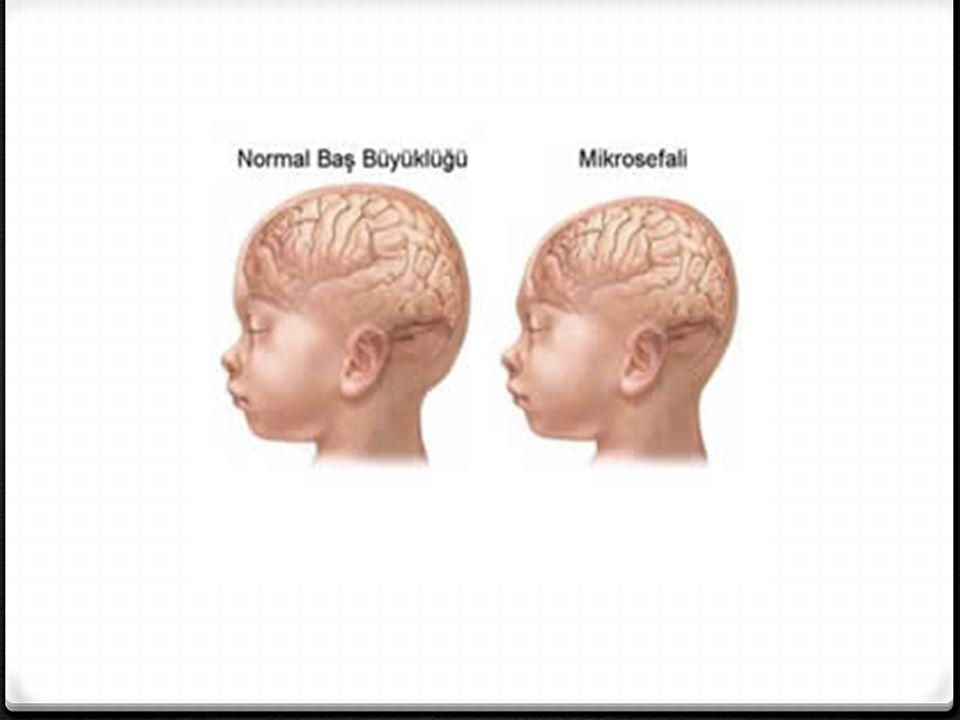 Hidrosefali : 0 Beyin sıvısının akışıyla kafatasının giderek büyümesi ve hasar görmesi sonucunda ortaya çıkmaktadır.
