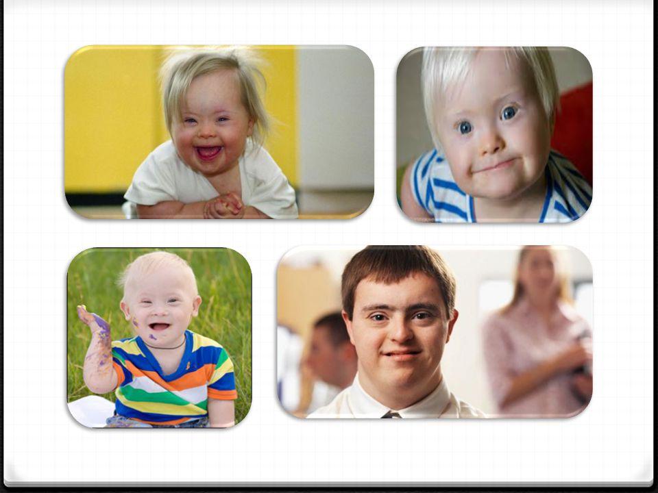 Frajil X: 0 Frajil X Sendromu, zeka geriliğinin ve öğrenme güçlüklerinin en sık kalıtsal sebebidir.