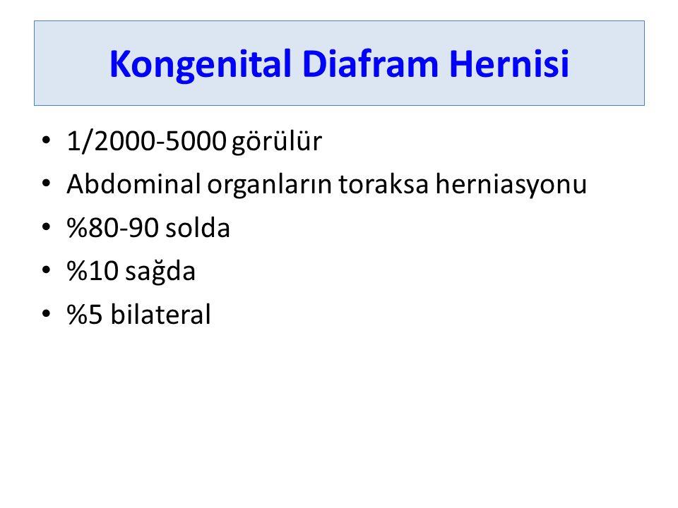 Kongenital Diafram Hernisi 1/2000-5000 görülür Abdominal organların toraksa herniasyonu %80-90 solda %10 sağda %5 bilateral