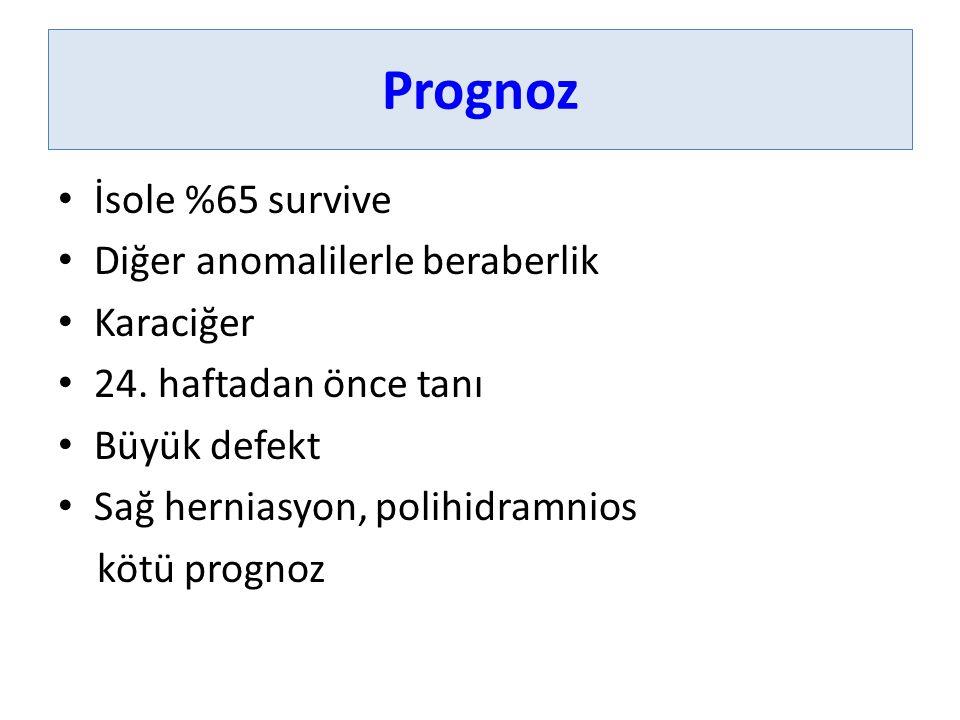 Prognoz İsole %65 survive Diğer anomalilerle beraberlik Karaciğer 24. haftadan önce tanı Büyük defekt Sağ herniasyon, polihidramnios kötü prognoz