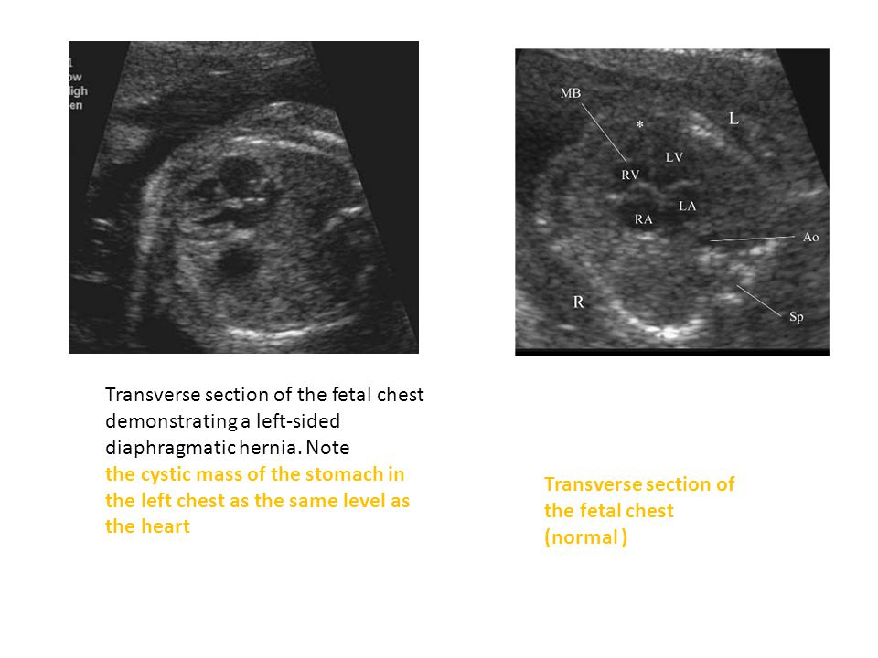 Transverse section of the fetal chest demonstrating a left-sided diaphragmatic hernia.