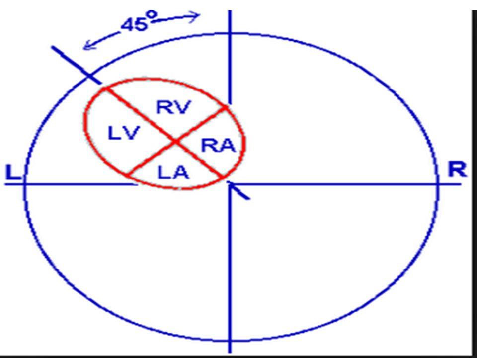 USG Bulguları Makrokist: >5mm multiple kist, değişen ölçülerde tek büyük kist olabilir Mikrokist: <5mm, ekojen, sınırları belirgin kitle Kalp yer değiştirir Mide normal Hidrops: kötü prognoz, %10