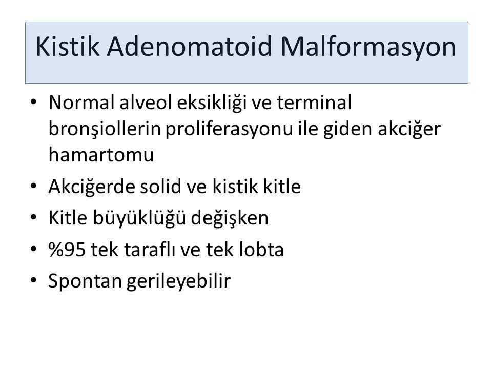 Kistik Adenomatoid Malformasyon Normal alveol eksikliği ve terminal bronşiollerin proliferasyonu ile giden akciğer hamartomu Akciğerde solid ve kistik
