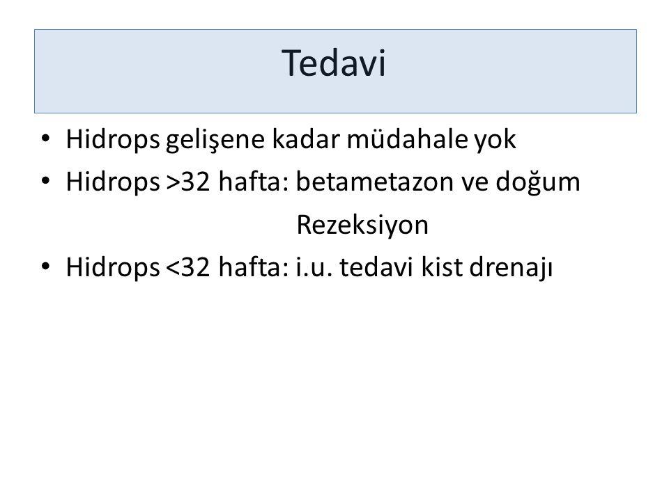 Tedavi Hidrops gelişene kadar müdahale yok Hidrops >32 hafta: betametazon ve doğum Rezeksiyon Hidrops <32 hafta: i.u. tedavi kist drenajı