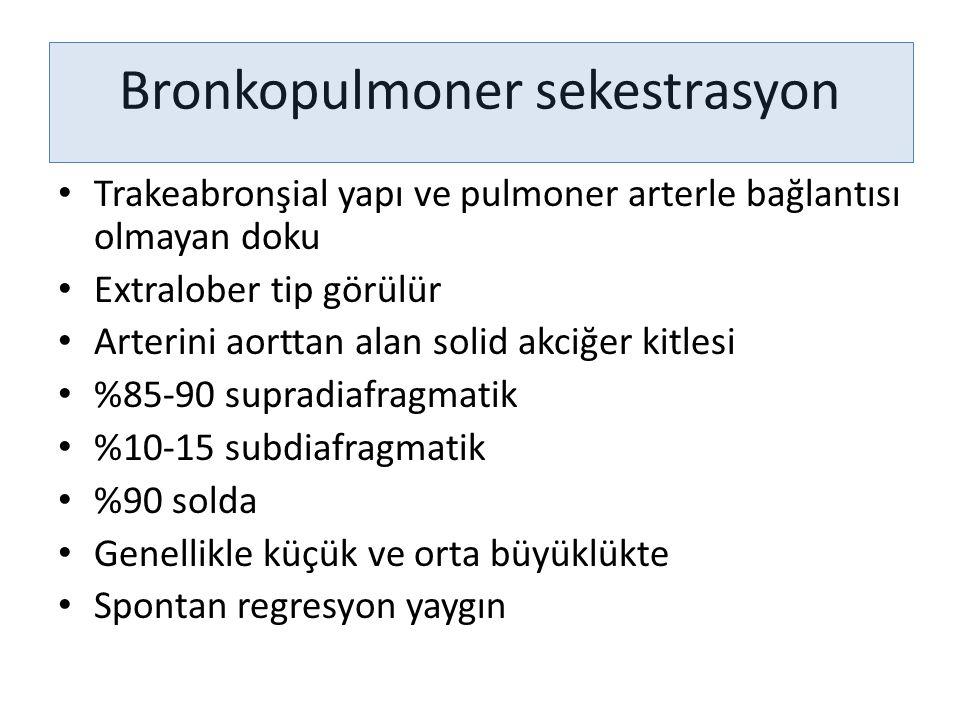 Bronkopulmoner sekestrasyon Trakeabronşial yapı ve pulmoner arterle bağlantısı olmayan doku Extralober tip görülür Arterini aorttan alan solid akciğer