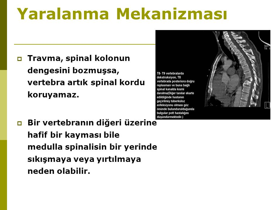 Yaralanma Mekanizması  Travma, spinal kolonun dengesini bozmuşsa, vertebra artık spinal kordu koruyamaz.  Bir vertebranın diğeri üzerine hafif bir k