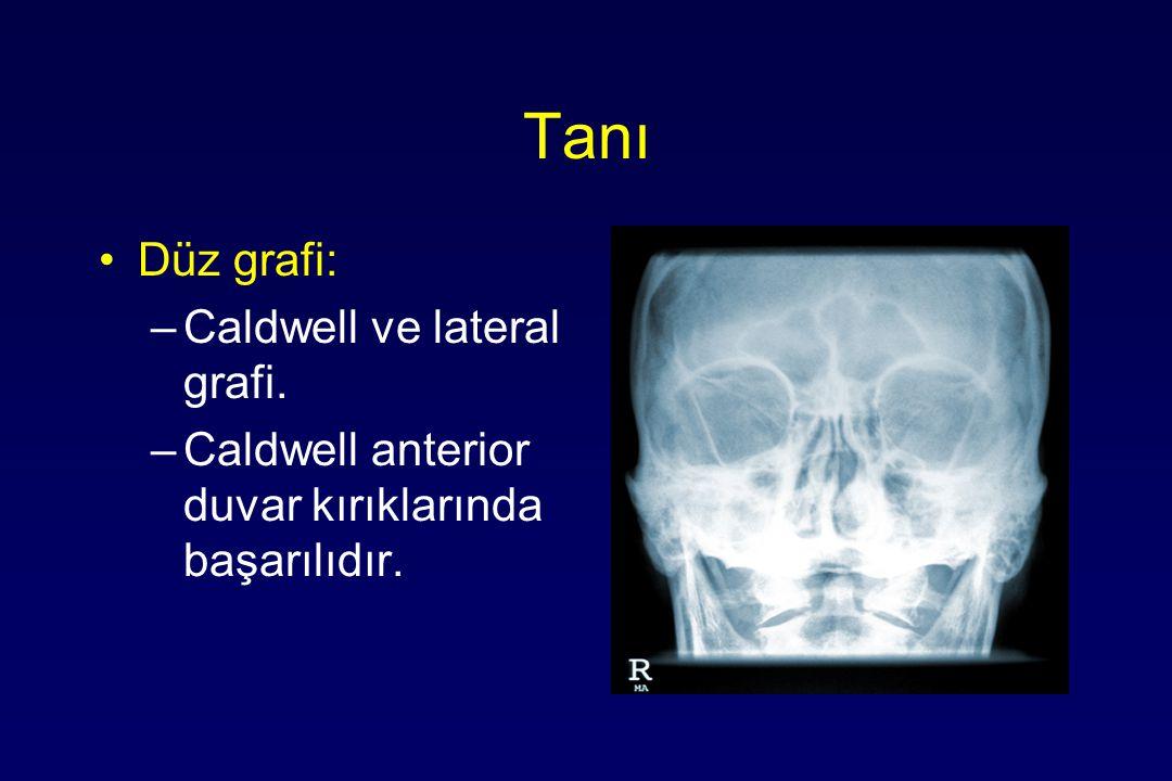 Tanı Düz grafi: –Caldwell ve lateral grafi. –Caldwell anterior duvar kırıklarında başarılıdır.