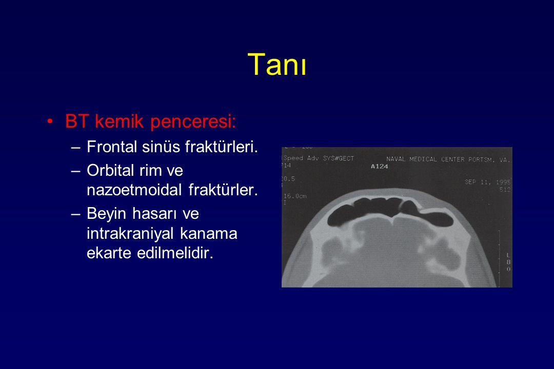 Tanı BT kemik penceresi: –Frontal sinüs fraktürleri. –Orbital rim ve nazoetmoidal fraktürler. –Beyin hasarı ve intrakraniyal kanama ekarte edilmelidir