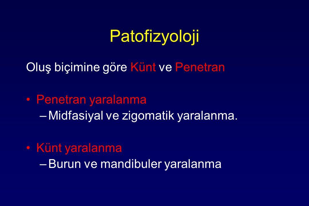 Patofizyoloji Yüksek şiddet ( 50G< ): –Supraorbital rim ----------200 G –Simfisis mandibula-------100 G –Frontal kemik--------------100 G –Angulus mandibula-------70 G Düşük şiddet ( <50G ): –Zigoma----------------------50 G –Os nazale-------------------30 G