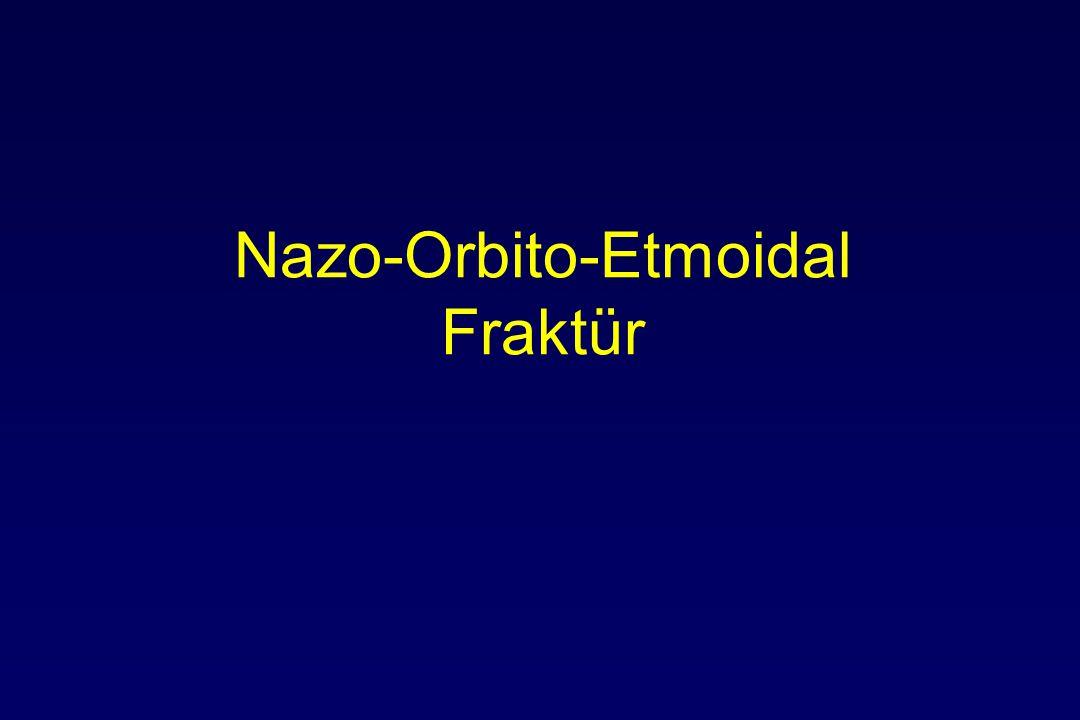 Nazo-Orbito-Etmoidal Fraktür