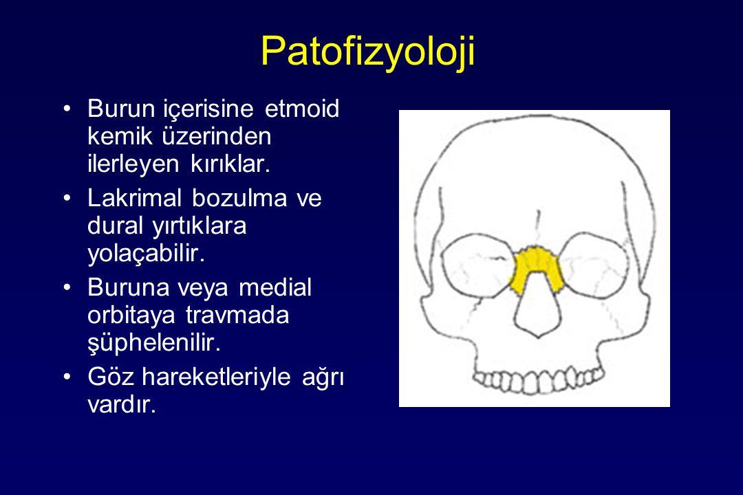 Patofizyoloji Burun içerisine etmoid kemik üzerinden ilerleyen kırıklar. Lakrimal bozulma ve dural yırtıklara yolaçabilir. Buruna veya medial orbitaya