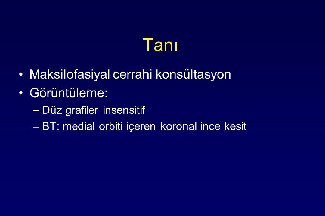 Tanı Maksilofasiyal cerrahi konsültasyon Görüntüleme: –Düz grafiler insensitif –BT: medial orbiti içeren koronal ince kesit