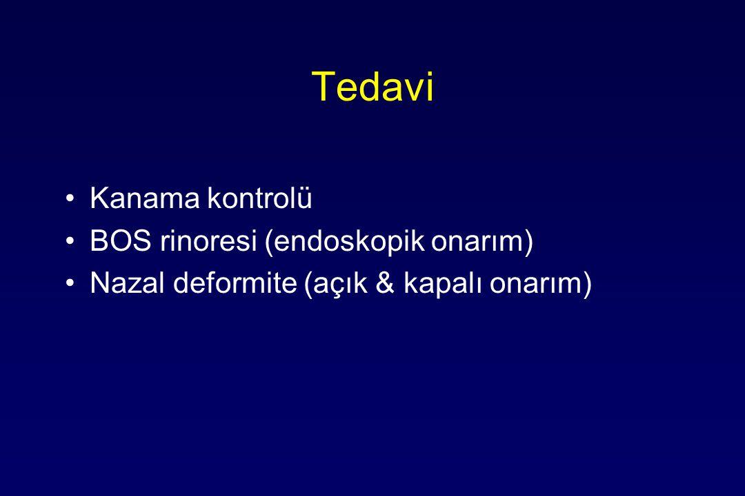 Tedavi Kanama kontrolü BOS rinoresi (endoskopik onarım) Nazal deformite (açık & kapalı onarım)