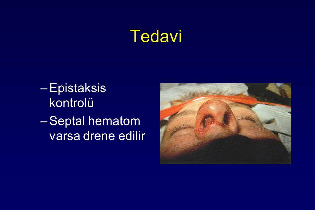 Tedavi –Epistaksis kontrolü –Septal hematom varsa drene edilir