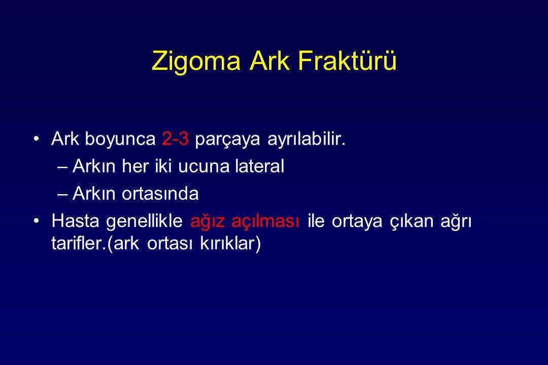 Zigoma Ark Fraktürü Ark boyunca 2-3 parçaya ayrılabilir. –Arkın her iki ucuna lateral –Arkın ortasında Hasta genellikle ağız açılması ile ortaya çıkan