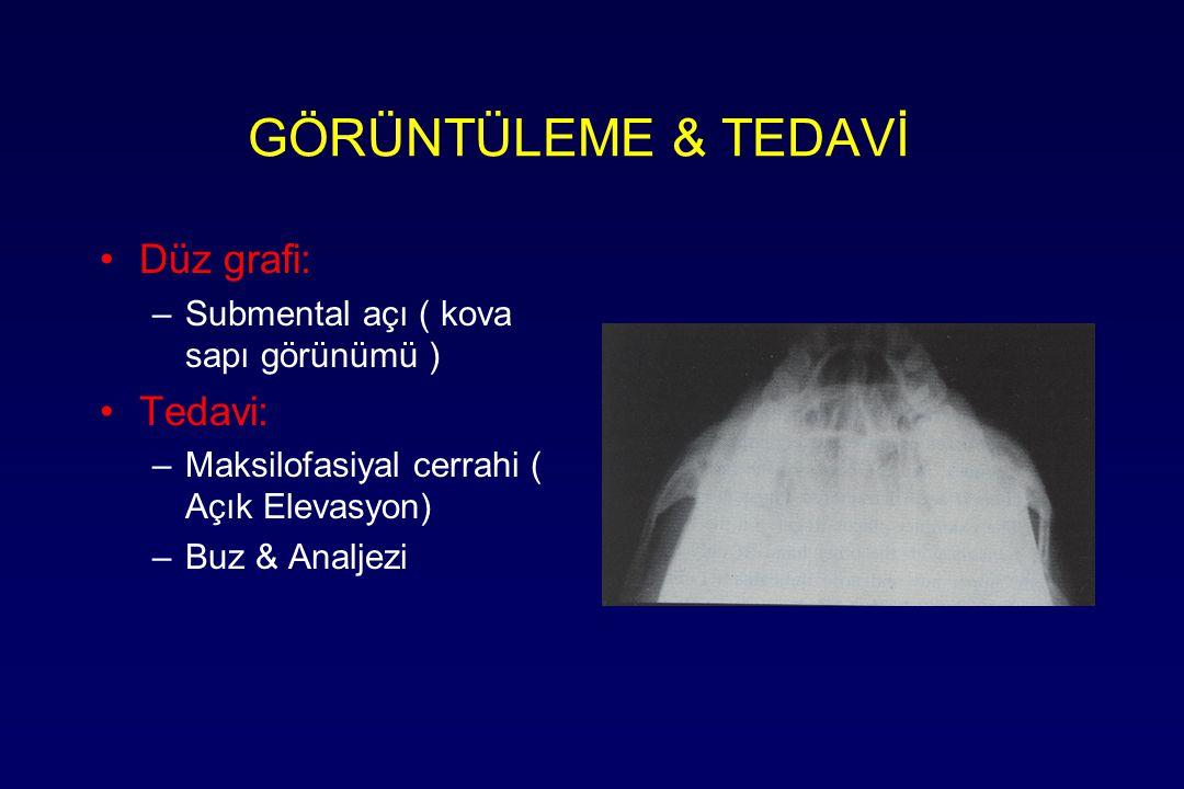 GÖRÜNTÜLEME & TEDAVİ Düz grafi: –Submental açı ( kova sapı görünümü ) Tedavi: –Maksilofasiyal cerrahi ( Açık Elevasyon) –Buz & Analjezi