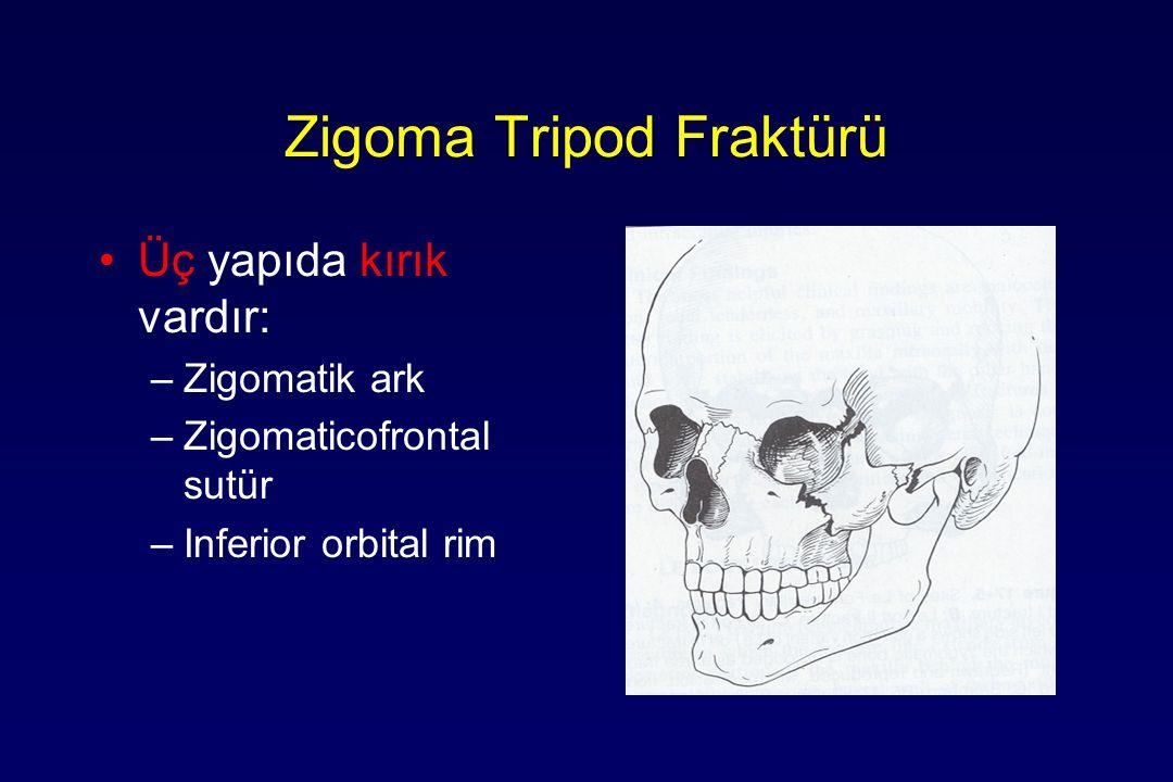 Zigoma Tripod Fraktürü Üç yapıda kırık vardır: –Zigomatik ark –Zigomaticofrontal sutür –Inferior orbital rim