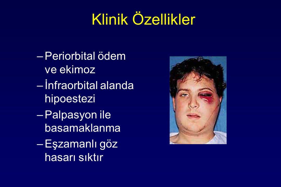 Klinik Özellikler –Periorbital ödem ve ekimoz –İnfraorbital alanda hipoestezi –Palpasyon ile basamaklanma –Eşzamanlı göz hasarı sıktır