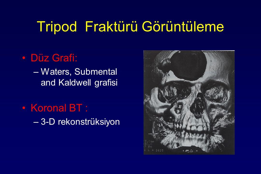 Tripod Fraktürü Görüntüleme Düz Grafi: –Waters, Submental and Kaldwell grafisi Koronal BT : –3-D rekonstrüksiyon
