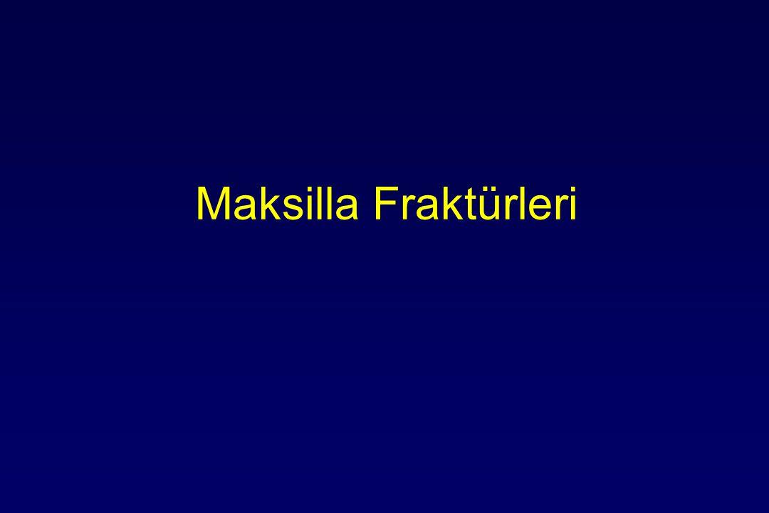 Maksilla Fraktürleri