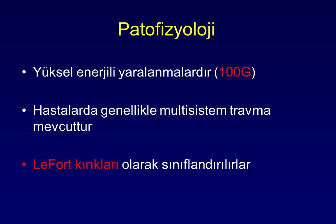 Patofizyoloji Yüksel enerjili yaralanmalardır (100G) Hastalarda genellikle multisistem travma mevcuttur LeFort kırıkları olarak sınıflandırılırlar