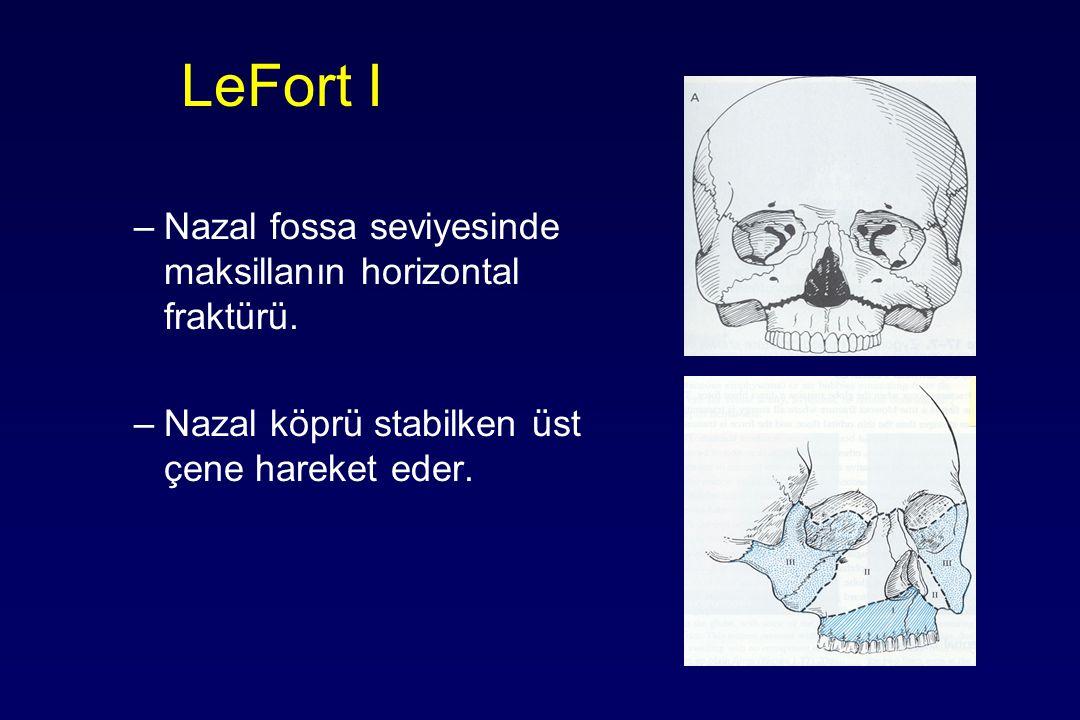 LeFort I –Nazal fossa seviyesinde maksillanın horizontal fraktürü. –Nazal köprü stabilken üst çene hareket eder.