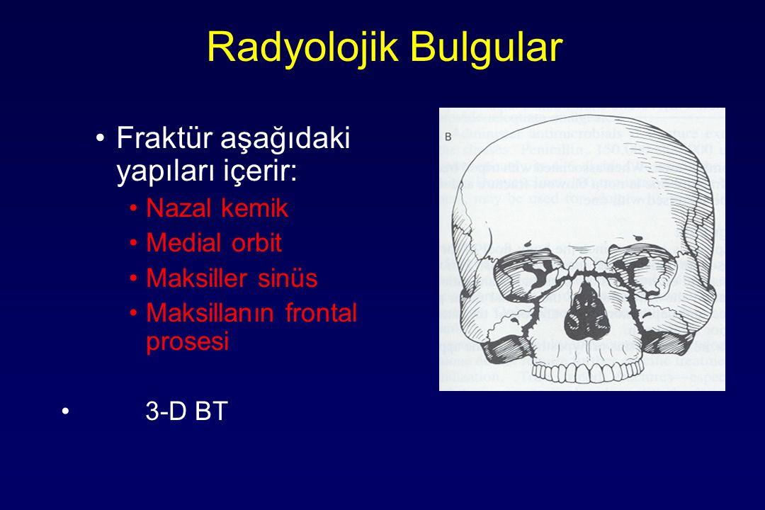 Radyolojik Bulgular Fraktür aşağıdaki yapıları içerir: Nazal kemik Medial orbit Maksiller sinüs Maksillanın frontal prosesi 3-D BT