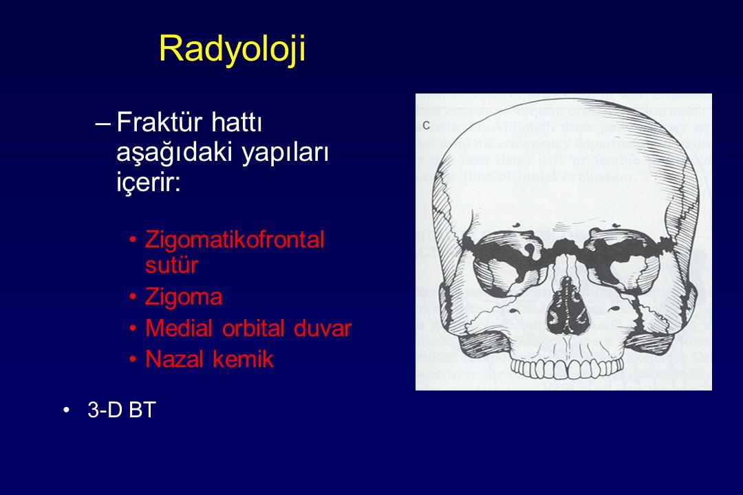 Radyoloji –Fraktür hattı aşağıdaki yapıları içerir: Zigomatikofrontal sutür Zigoma Medial orbital duvar Nazal kemik 3-D BT