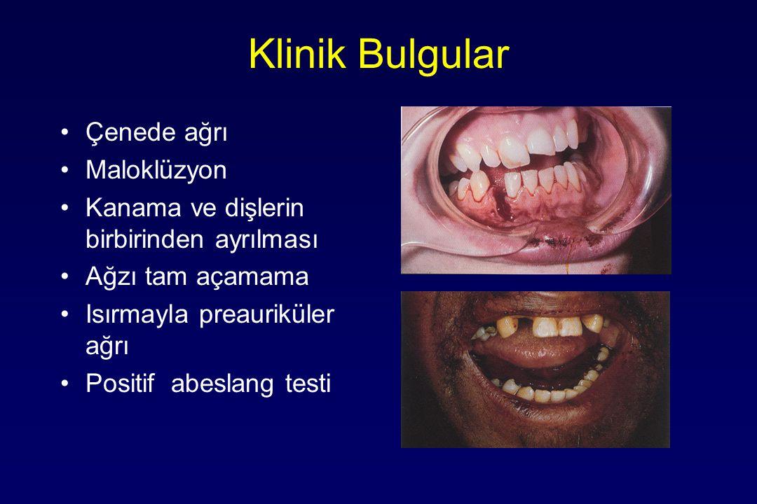 Klinik Bulgular Çenede ağrı Maloklüzyon Kanama ve dişlerin birbirinden ayrılması Ağzı tam açamama Isırmayla preauriküler ağrı Positif abeslang testi