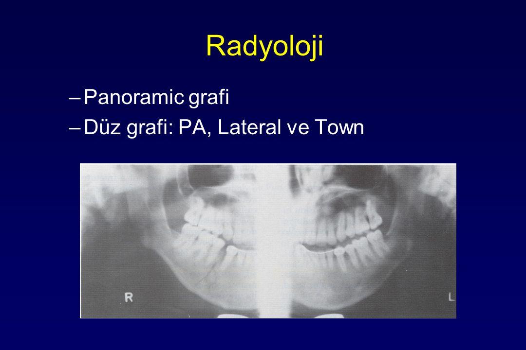 Radyoloji –Panoramic grafi –Düz grafi: PA, Lateral ve Town