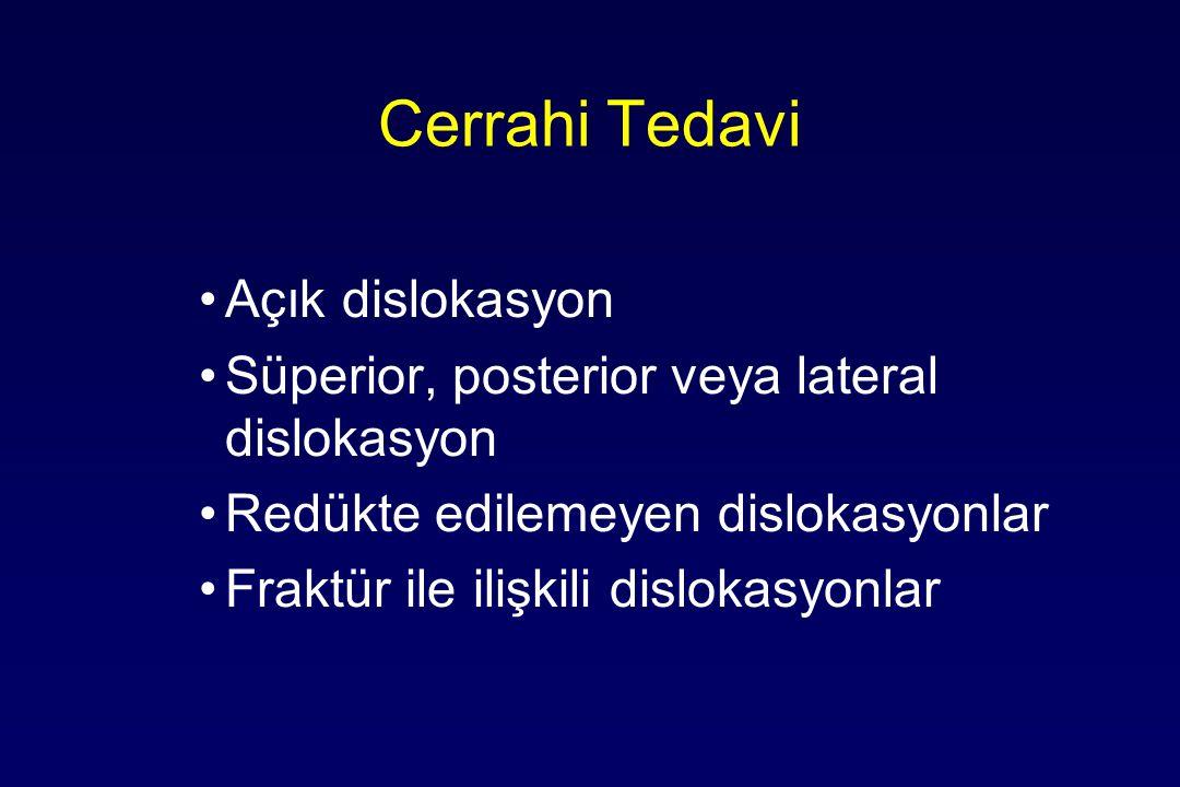 Cerrahi Tedavi Açık dislokasyon Süperior, posterior veya lateral dislokasyon Redükte edilemeyen dislokasyonlar Fraktür ile ilişkili dislokasyonlar