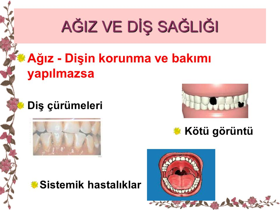 AĞIZ VE DİŞ SAĞLIĞI Ağız - Dişin korunma ve bakımı yapılmazsa Diş çürümeleri Kötü görüntü Sistemik hastalıklar