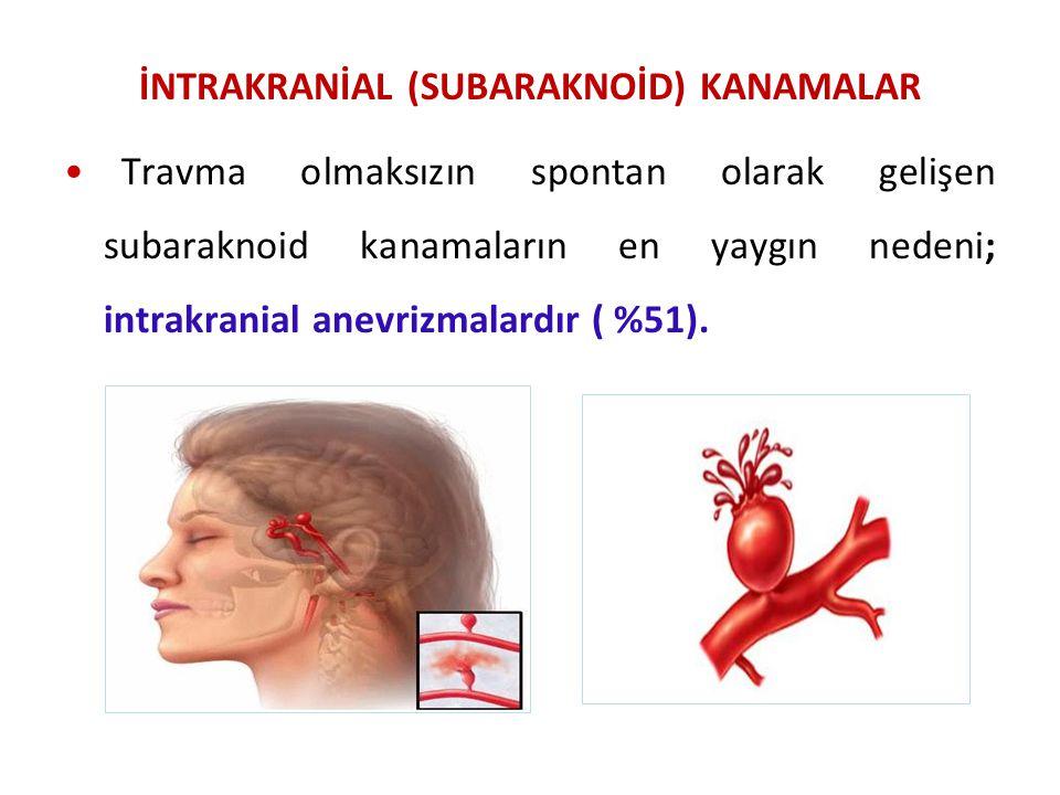 İNTRAKRANİAL (SUBARAKNOİD) KANAMALAR Travma olmaksızın spontan olarak gelişen subaraknoid kanamaların en yaygın nedeni; intrakranial anevrizmalardır (