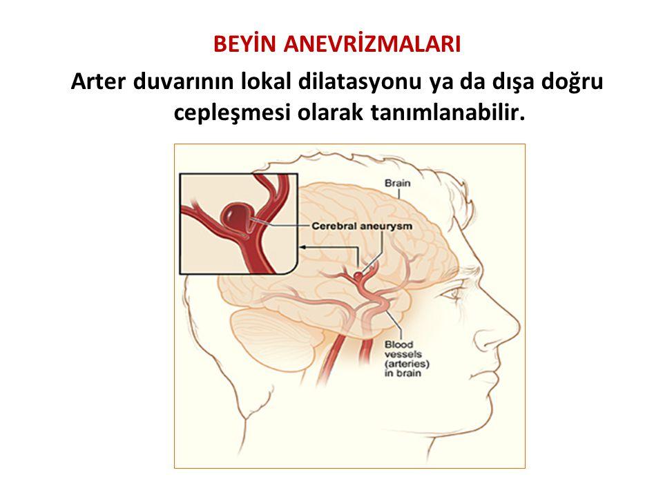 BEYİN ANEVRİZMALARI Arter duvarının lokal dilatasyonu ya da dışa doğru cepleşmesi olarak tanımlanabilir.