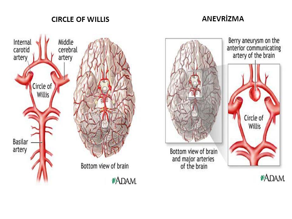 CIRCLE OF WILLIS ANEVRİZMA