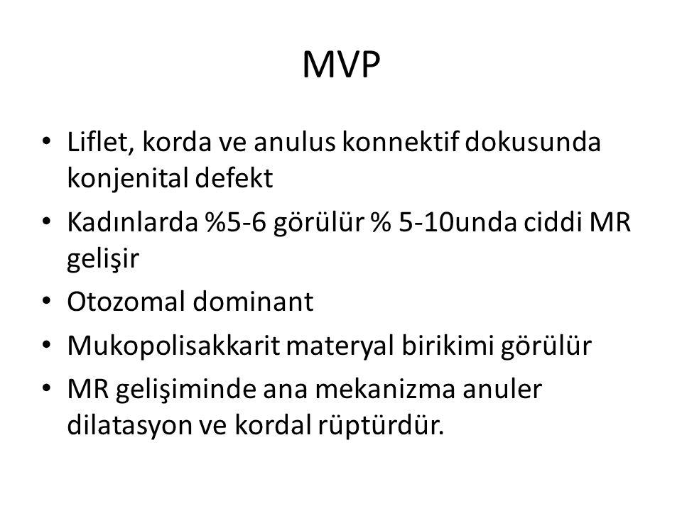 MVP Liflet, korda ve anulus konnektif dokusunda konjenital defekt Kadınlarda %5-6 görülür % 5-10unda ciddi MR gelişir Otozomal dominant Mukopolisakkar