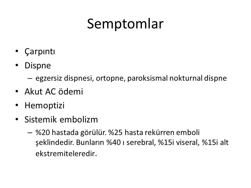 Semptomlar Çarpıntı Dispne – egzersiz dispnesi, ortopne, paroksismal nokturnal dispne Akut AC ödemi Hemoptizi Sistemik embolizm – %20 hastada görülür.