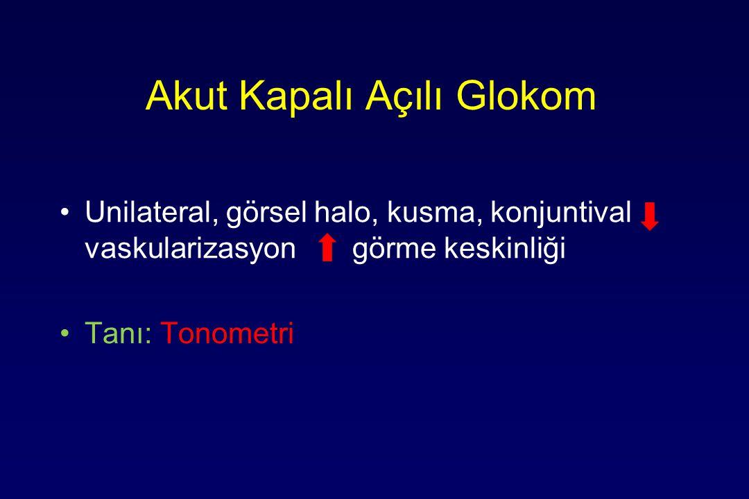 Akut Kapalı Açılı Glokom Unilateral, görsel halo, kusma, konjuntival vaskularizasyon görme keskinliği Tanı: Tonometri