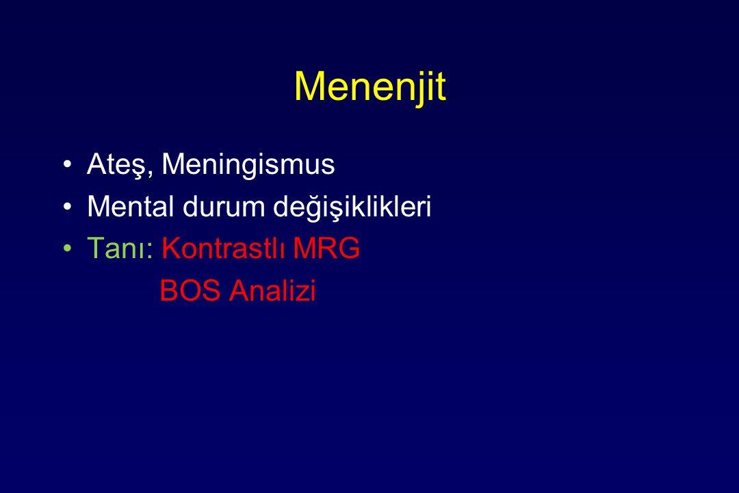 Menenjit Ateş, Meningismus Mental durum değişiklikleri Tanı: Kontrastlı MRG BOS Analizi
