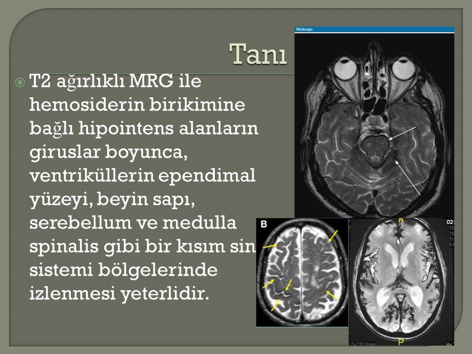  T2 a ğ ırlıklı MRG ile hemosiderin birikimine ba ğ lı hipointens alanların giruslar boyunca, ventriküllerin ependimal yüzeyi, beyin sapı, serebellum ve medulla spinalis gibi bir kısım sinir sistemi bölgelerinde izlenmesi yeterlidir.