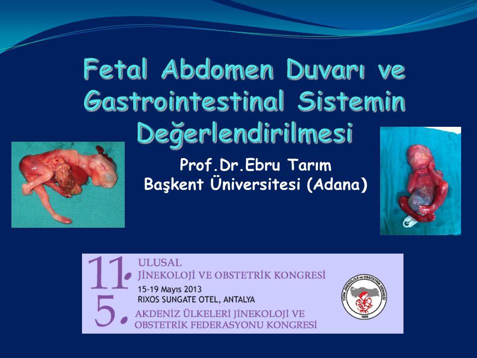 Prof.Dr.Ebru Tarım Başkent Üniversitesi (Adana )